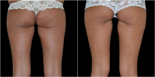 Buttocks after 4 treatments